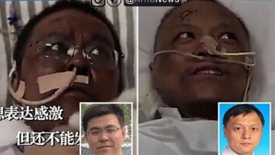 Photo of سیاه شدن پوست ۲ پزشک مبتلا به کرونا – کووید۱۹! (عکس)