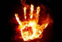 Photo of دختر ۱۸ ساله رشتی در آتش خشم و تعصب برادر سوخت