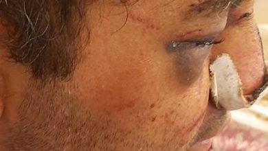 تصویر از روایت ضرب و شتم متخصص بیهوشی در پیرانشهر